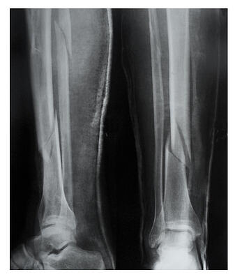 accident-insurance-fracture